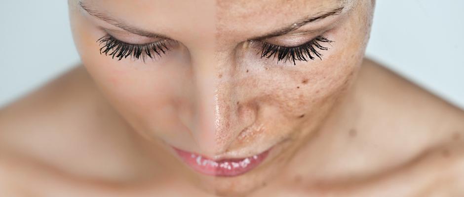 Lasersko uklanjanje hiperpigmentacija