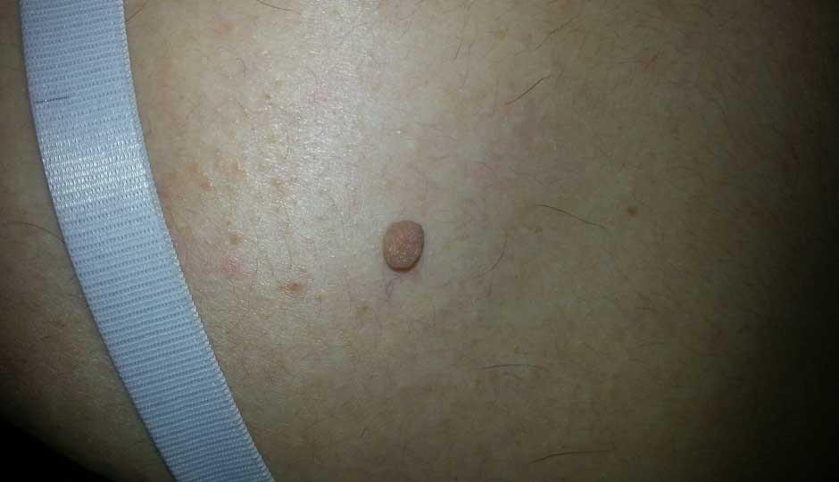 Uklanjanje fibroma
